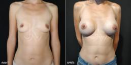 Chirurgie augmentation mammaire prothèse 01 - avant/après - face