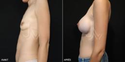 Chirurgie augmentation mammaire prothèse 01 - avant/après - profil