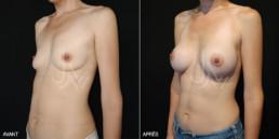 Chirurgie augmentation mammaire prothèse 01 - avant/après - trois-quart